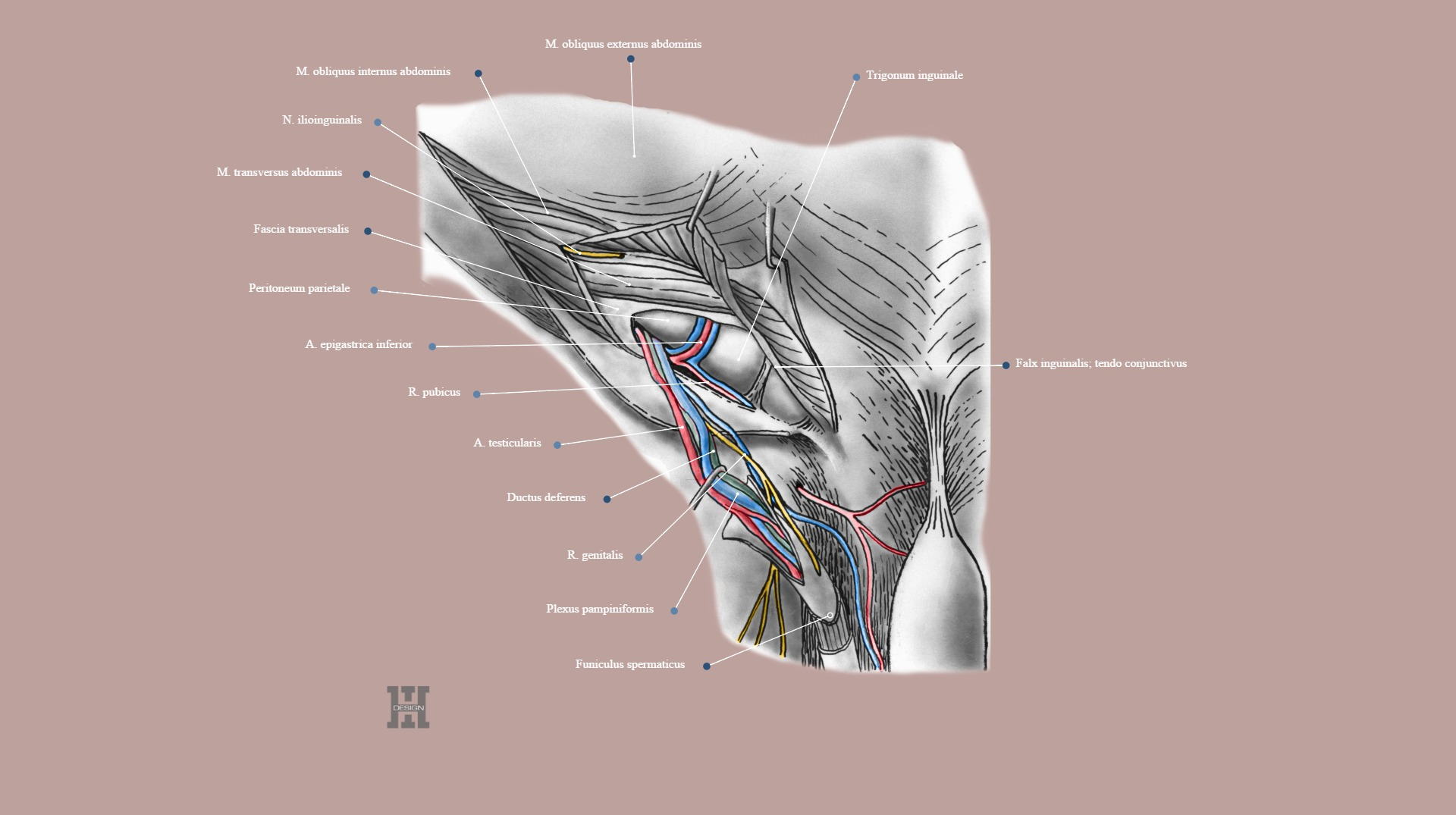 Regio inguinalis, spermatic cord dissection